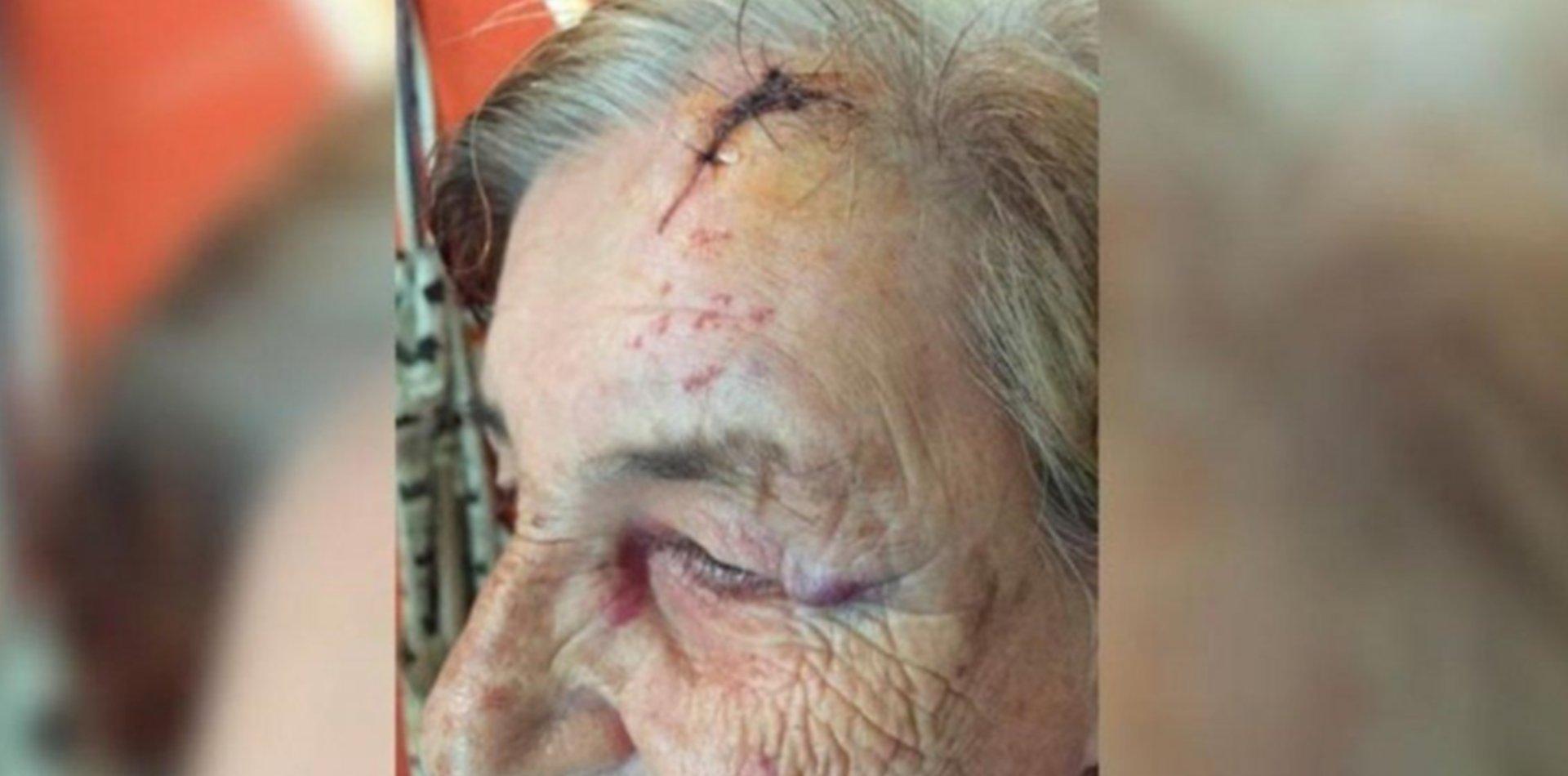 Dos abuelos fueron atacados brutalmente por su nieto y los tiene amenazados de muerte