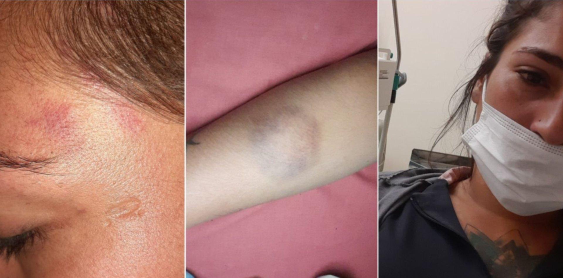 Una mujer denunció que su ex le gatilló cinco veces en la cabeza, pero sigue libre