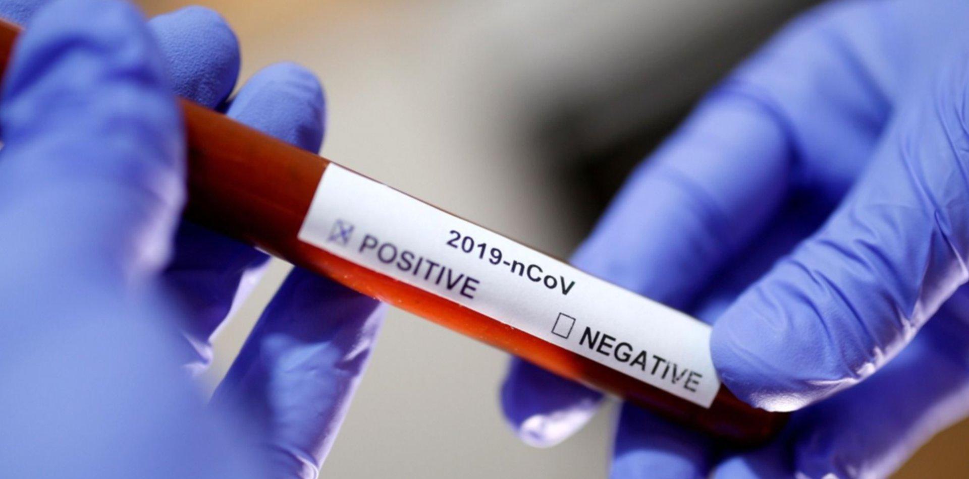 Descubren la primera evidencia del gen que hace que personas con COVID sean asintomáticas