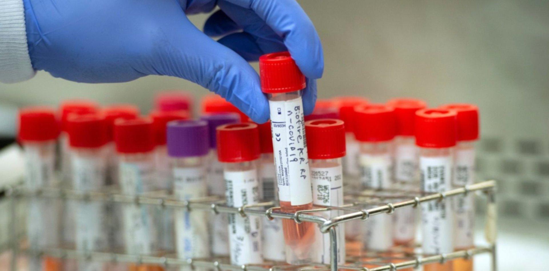 Veterinarias también hará testeos de coronavirus