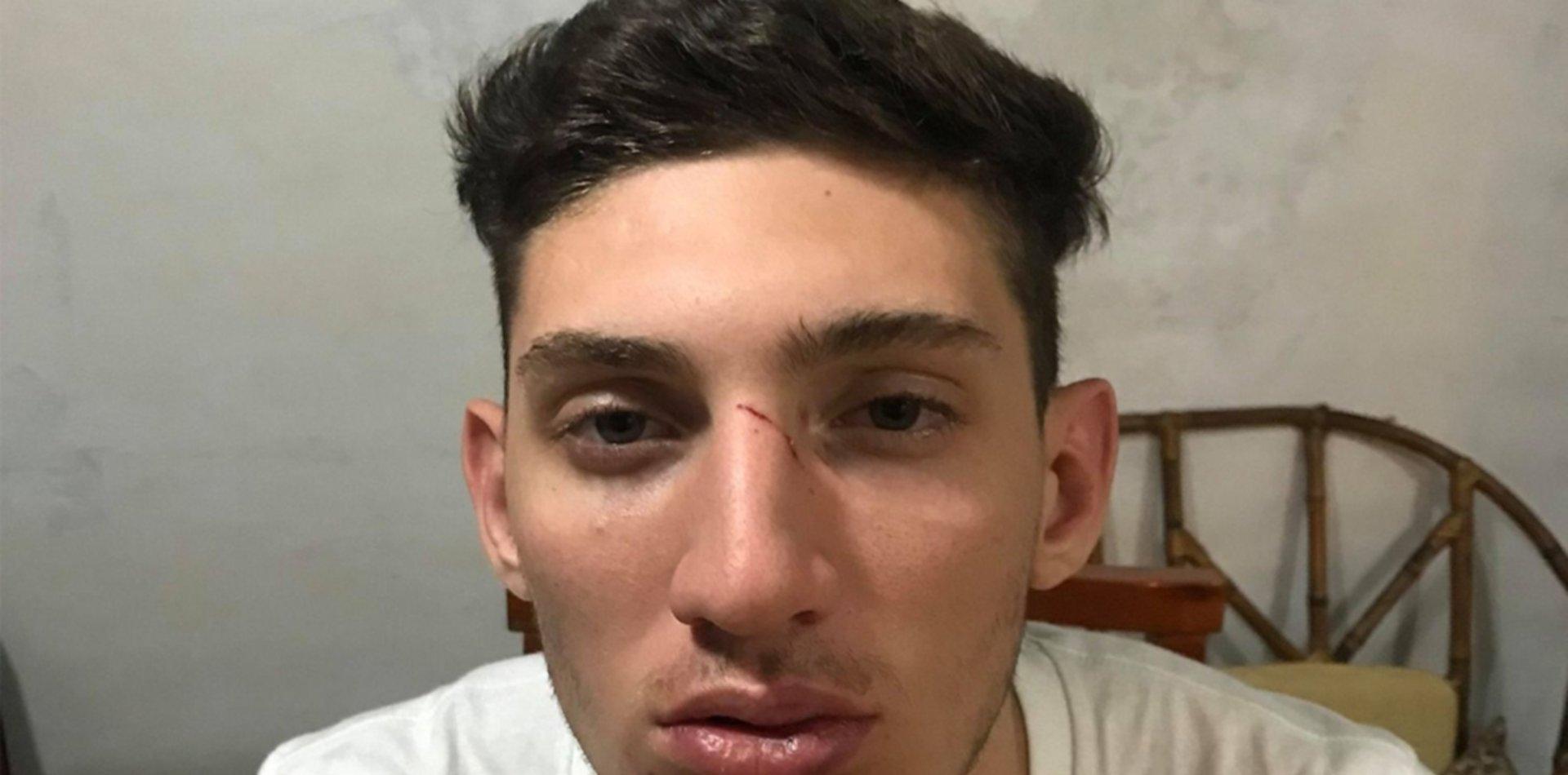 Archivaron la causa a un rugbier de La Plata acusado de lesionar a basquetbolista