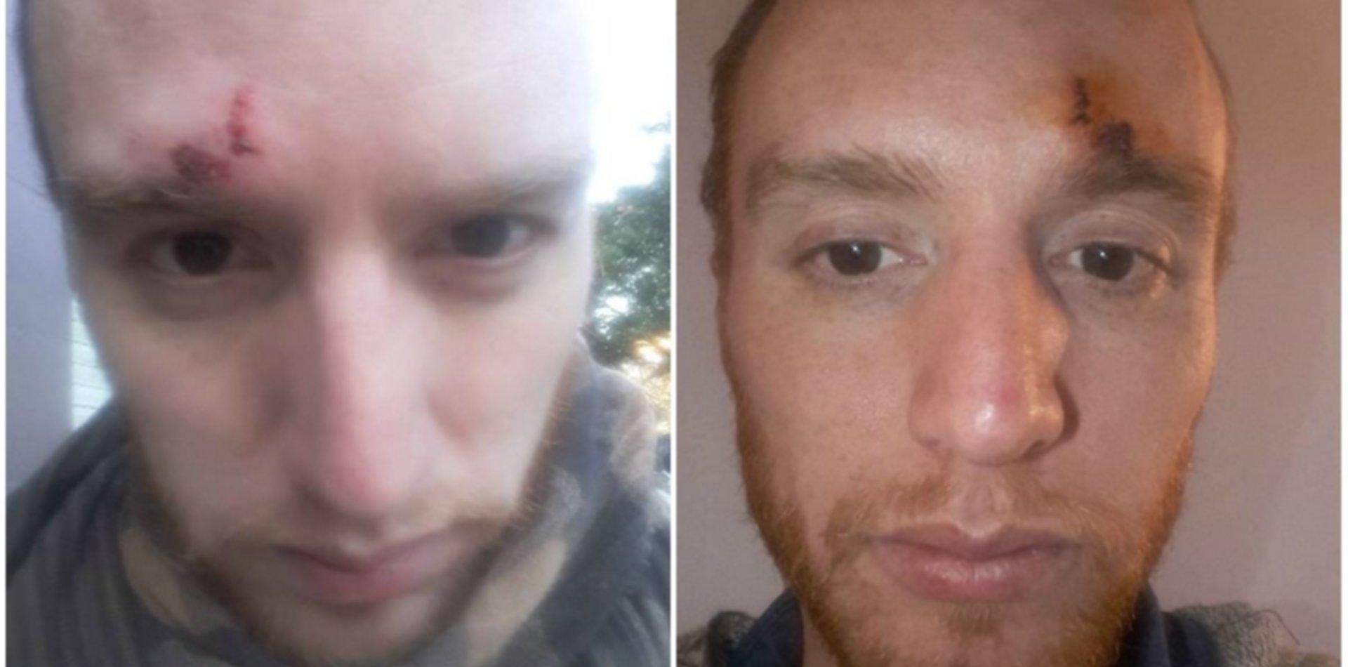 Salvaje ataque homofóbico en Zona Norte: le rompieron la cabeza por ser gay