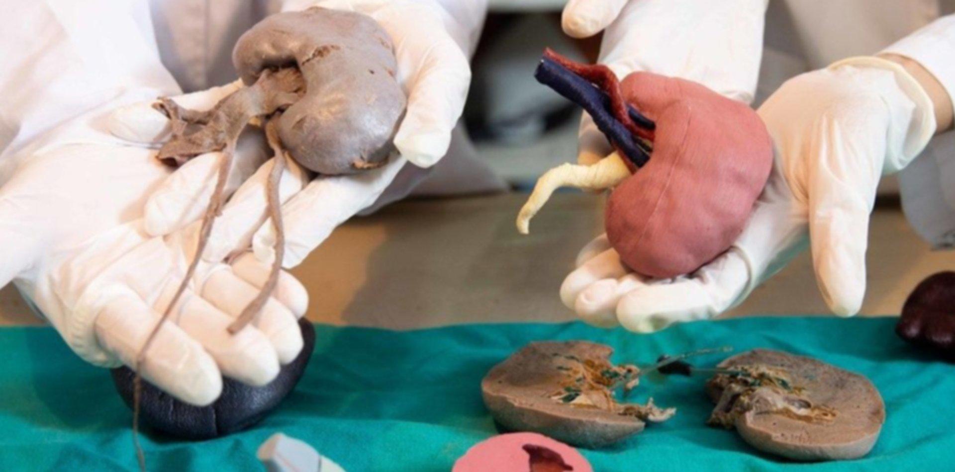 Un laboratorio de la UNLP implementa tecnología 3D y anatomía digital para las cirugías