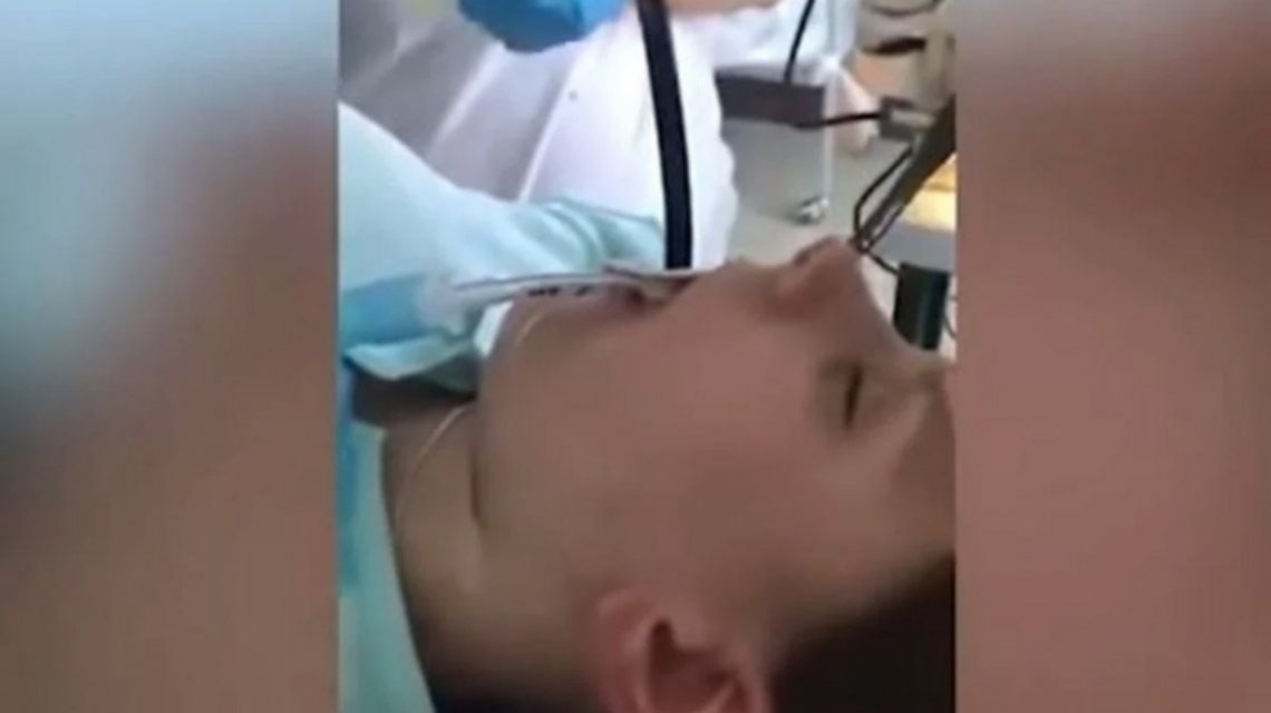 VIDEO: Fue al hospital porque no podía respirar y le sacaron una serpiente de la garganta