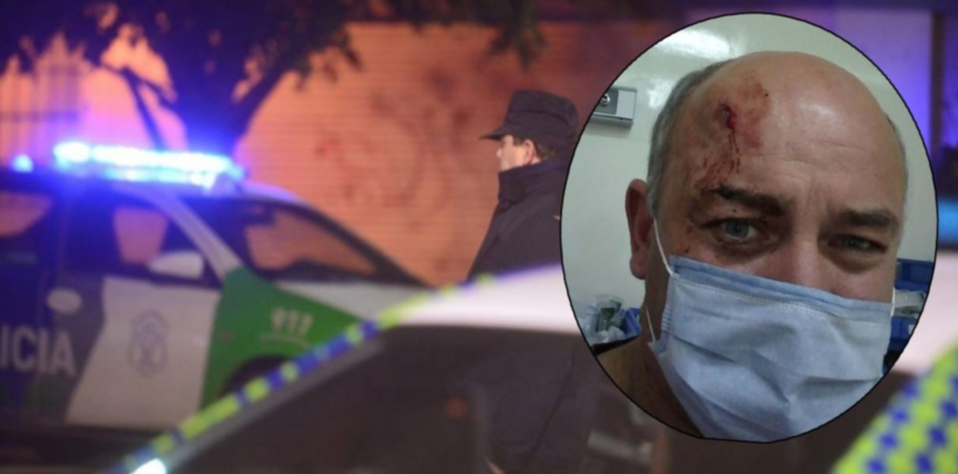 Tolosa: balearon a un hombre en la cabeza y se salvó de milagro