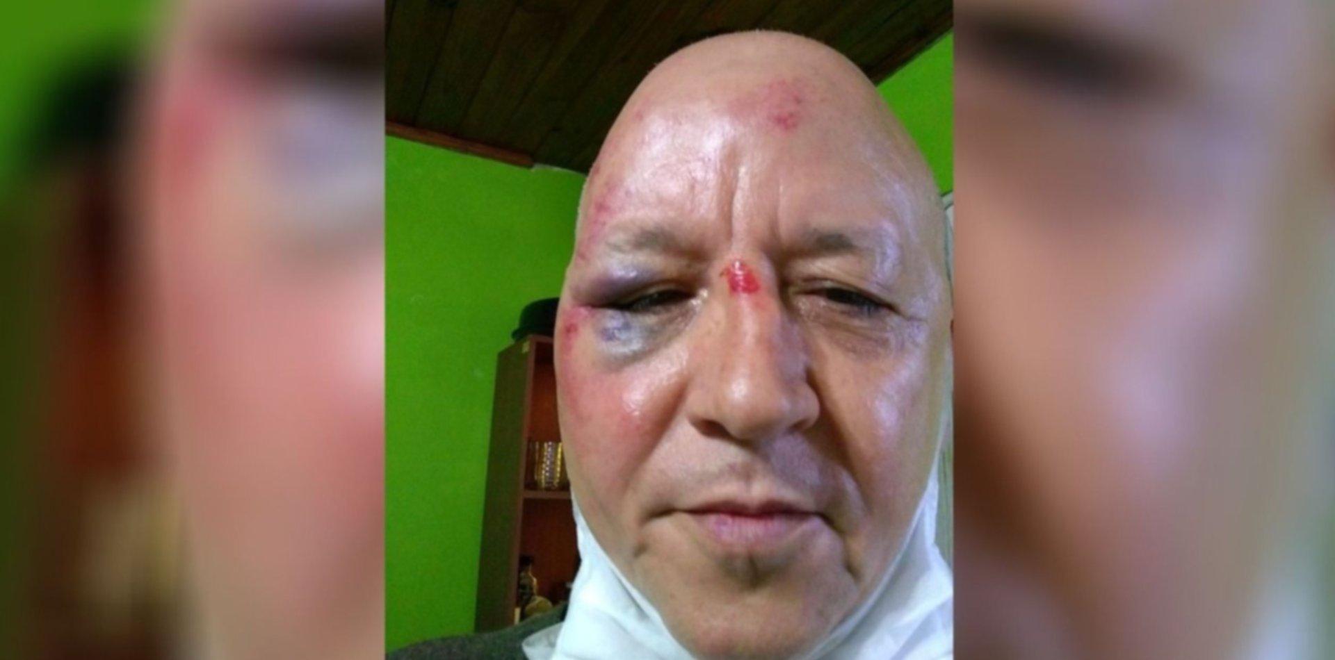 """Atacaron con una baldosa a un conocido artista de la región: """"Me podría haber matado"""""""