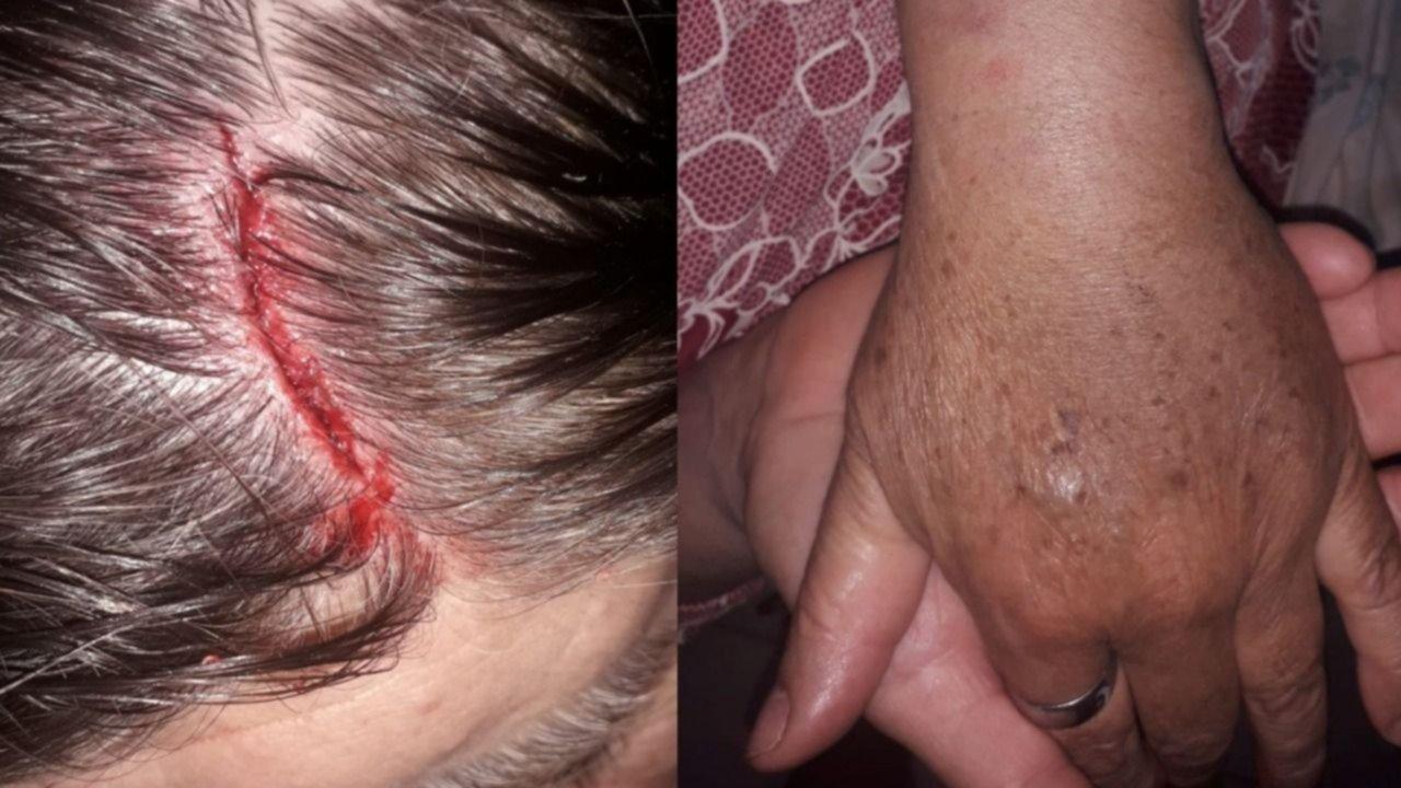 """El brutal ataque de dos motochorros a una jubilada en La Plata: """"Me abrió la cabeza"""""""