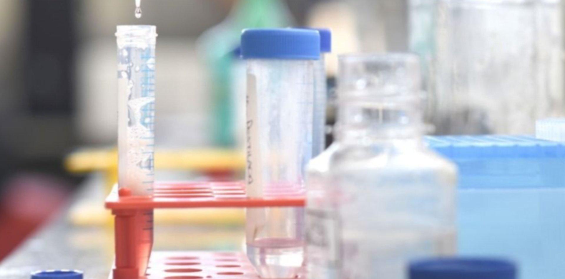Investigadores de la UNLP comprueban el daño que causa una enfermedad rara en los riñones